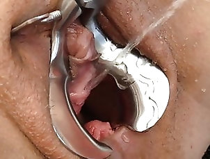 Amateur;Asian;Chinese;HD Videos;Slave;Pissing SPECULUM PEE